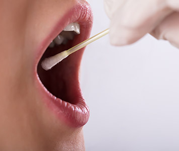 mouth swab for genetic testing